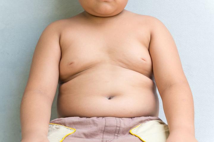 trẻ béo phì
